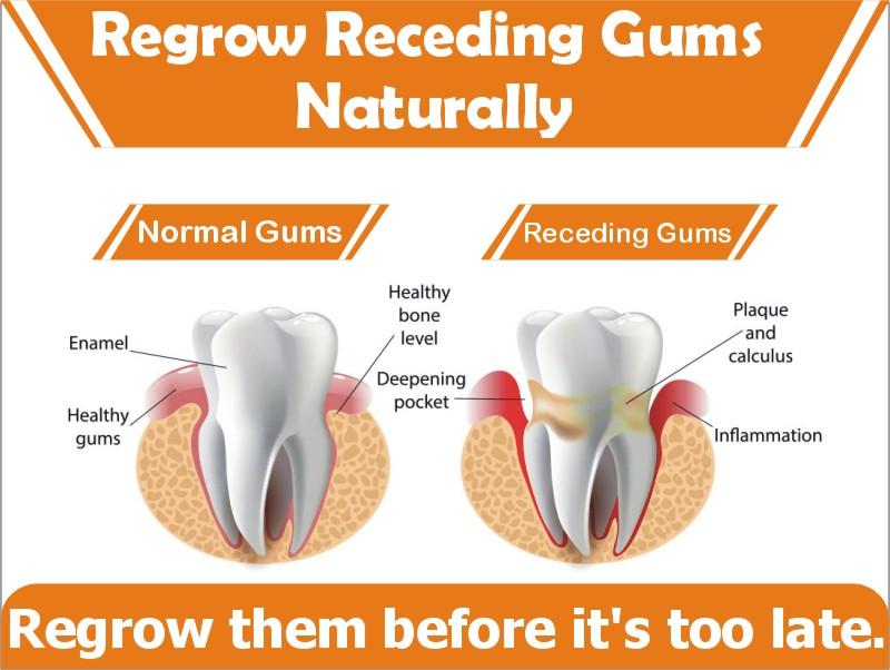 Stop Receding Gums Naturally